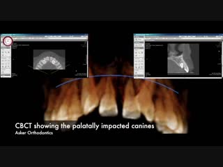 Orthodontic case report for palatally impacted canines traction in orthodontics by Dr. Amr Asker. Ортодонтия.