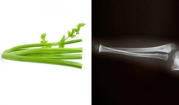 Еда полезна для той части тела, на которую похожа 1. Морковь – глазаНарежьте морковку пластиками немного наискосок – и увидите, насколько этот овощ напоминает глаз, вплоть до мельчайших линий,