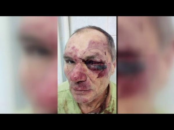 На Рівненщині жорстоко побили пенсіонера нападники відомі, але не затримані