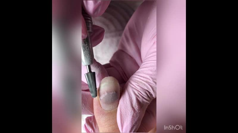Как правильно и легко снять отслойку с ногтей