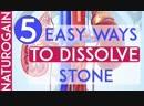 5 Easy Ways to Dissolve Stone, Improve Kidney Health