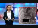 ဖ်ာပံုမွာ အမ်ဳိးသမီးတစ္ဦး ထိုးသြင္းဒဏ္ရာ အခ်က္ေပါင္းမ်ားစြာျဖင့္ အသတ္ခံရ
