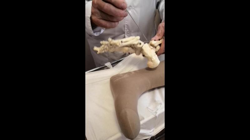 Скелетное вытяжение нога2