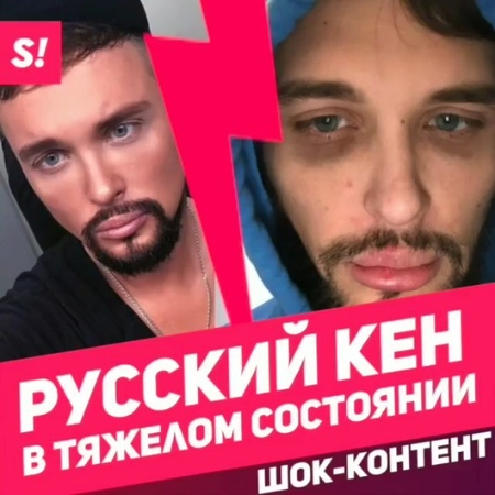 """Showbiz_tv_ on Instagram: """"Осторожно: шок-контент! Друзья звезды Дома-2 Егора Холявина @egor_holyavin сообщили о его госпитализации из-за очеред..."""