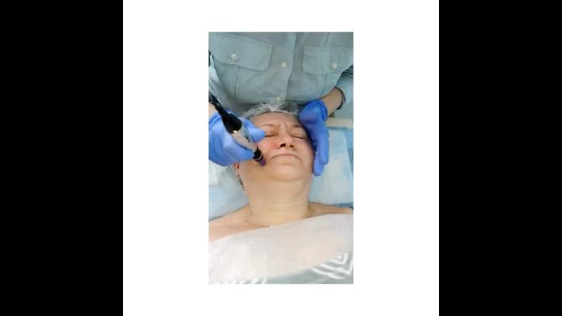 Процедура микронидлинга (фракционная мезотерапия) с препаратом Dermaheal HSR