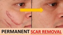How to REMOVE NEW OLD SCARS in 2 WEEKS Naturally get RID of SCARS FAST Muskaan Hamad