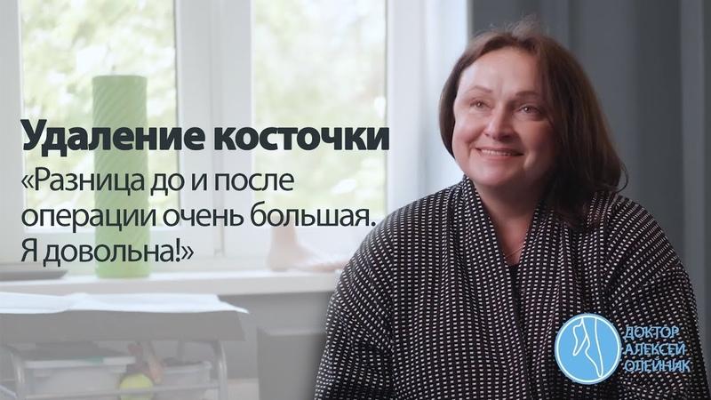 КОСТОЧКИ НА НОГАХ: Разница до и после операции очень большая. Я довольна! | Доктор Алексей Олейник