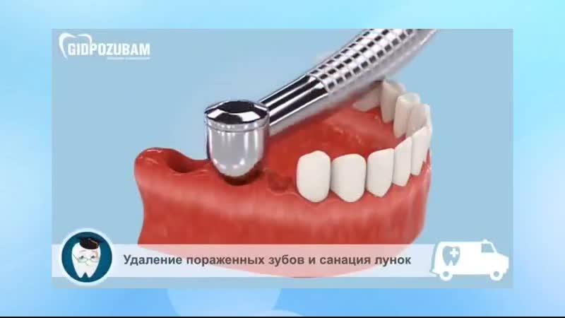 Стоматологические имплантанты