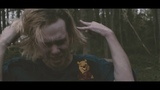 Gizmo - No Teeth (OFFICIAL MUSIC VIDEO)