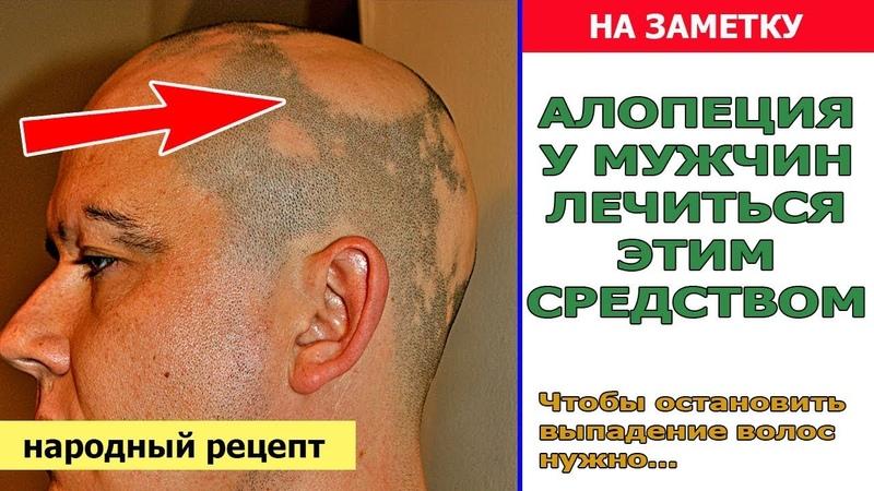 Лечение алопеции у мужчин в домашних условиях | Чтобы остановить выпадение волос нужно...