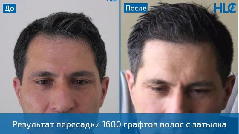 Результат пересадки 1600 графтов волос мужчине на голову