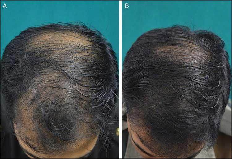 рис. 1 (A и B) Отличный ответ на ботокс для волос на 24 неделе.