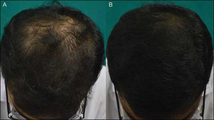 рис. 3 (A и B) Отличный ответ на на ботокс от выпадения  волос 24 неделе