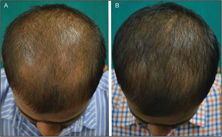 рис. 4 (A и B) Хороший ответ на ботокс от выпадения волос виден через 24 недели