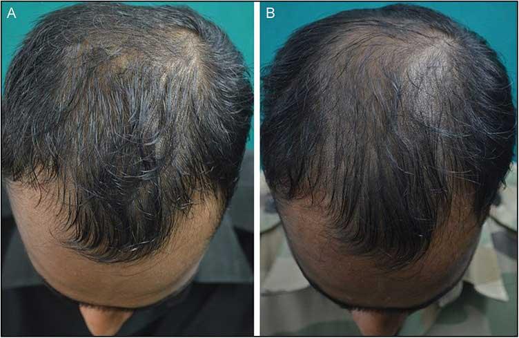 рис. 2 (A и B) Плохой ответ на ботокс для волос наблюдается через 24 недели