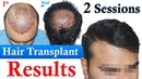 Hair Transplant with low Donor Dr Suneet Soni Medispa India Best Hair Transplant Jaipur Delhi
