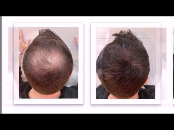 Fixplant Saç Fiberi Fixplant Hair Building