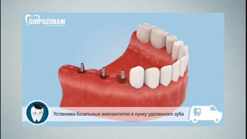Стоматологическая имплантация. Несколько способов