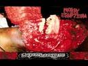 Artery Eruption - Spewage (Compilation) (2004) (FULL)