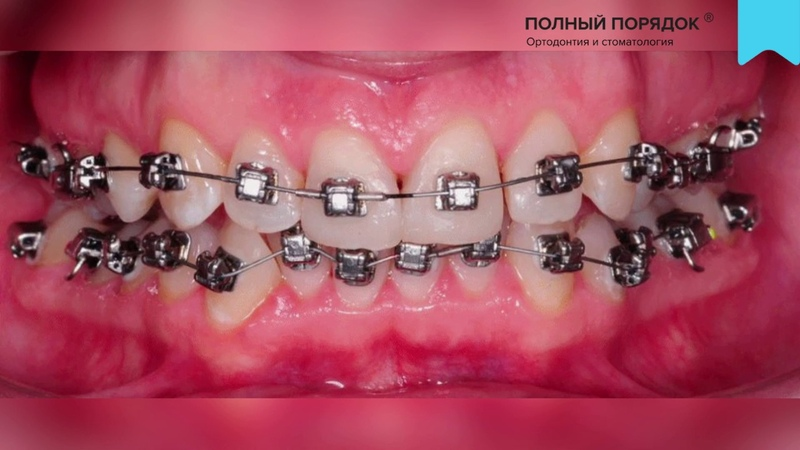 Видео 147. Прогресс за 15 месяцев ортодонтического лечения цифровыми брекетами INSIGNIA