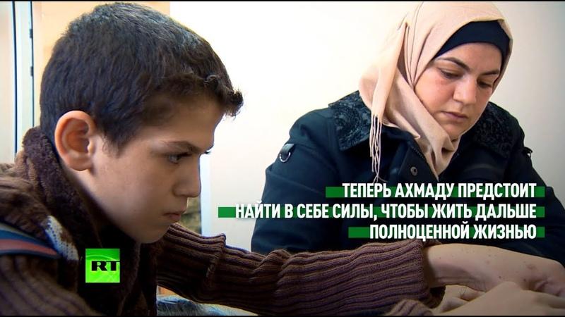 Найти силы жить дальше: российские врачи помогли сирийскому мальчику, пострадавшему при взрыве