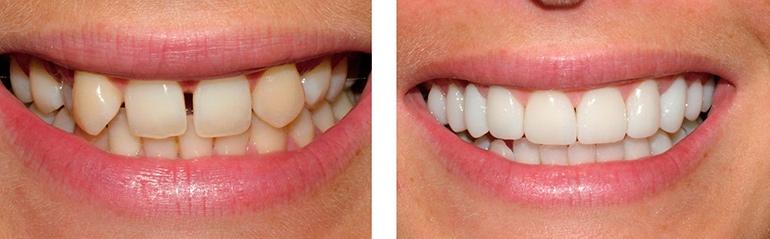 виниры на зубы хороши для маскировки дефектов