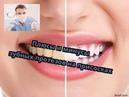 Плюсы и минусы зубных протезов на присосках