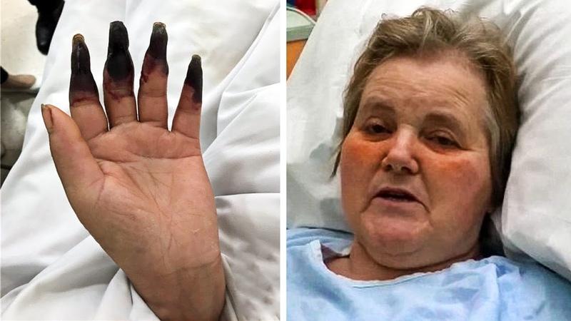 Через 2 дня после уборки женщина начала замечать что ее пальцы чернеют