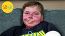Living in a Body of Open Wounds with Less than Half His Skin Epidermolysis Bullosa