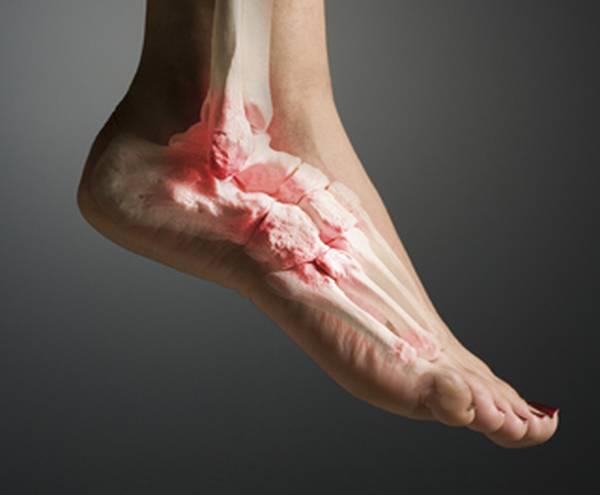 Какие симптомы бывают при подагре лодыжки?