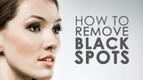 How To Remove Dark Spots In 7 Days - YouTube