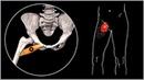 БОЛИТ ОБЛАСТЬ ПАХА И БЕДРО: Гребенчатая мышца и миофасциальный синдром
