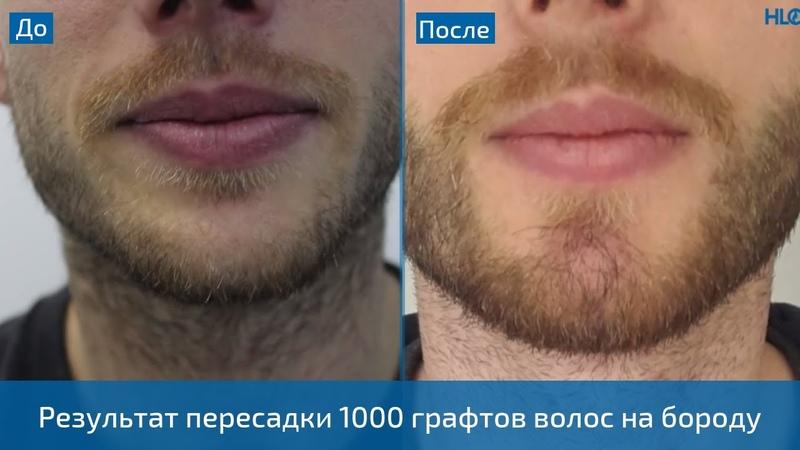 Пересадка волос в Турции - 1000 графтов на бороду