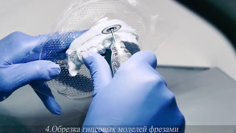 Изготовление капп на зубы II Стоматология Виртуоз Воронеж