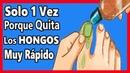 Lo Llaman EL COME HONGOS Porque es La Mejor Solución Para QUITAR Los hongos en Las Uñas