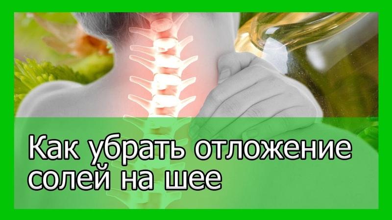Как убрать отложение солей на шее и облегчить боль
