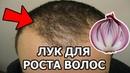 Лук для волос от выпадания | Маска из лука для роста волос | Лечение облысения луком