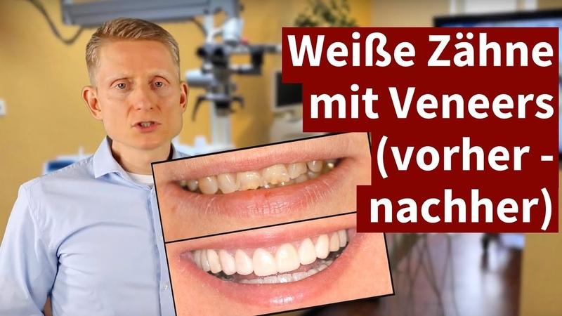 Weiße Zähne mit Veneers (vorher - nachher)