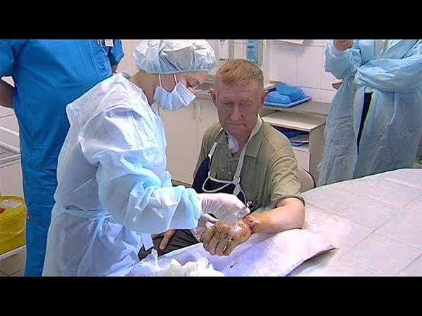 Пермские врачи пришили мужчине руку, отрубленную топором