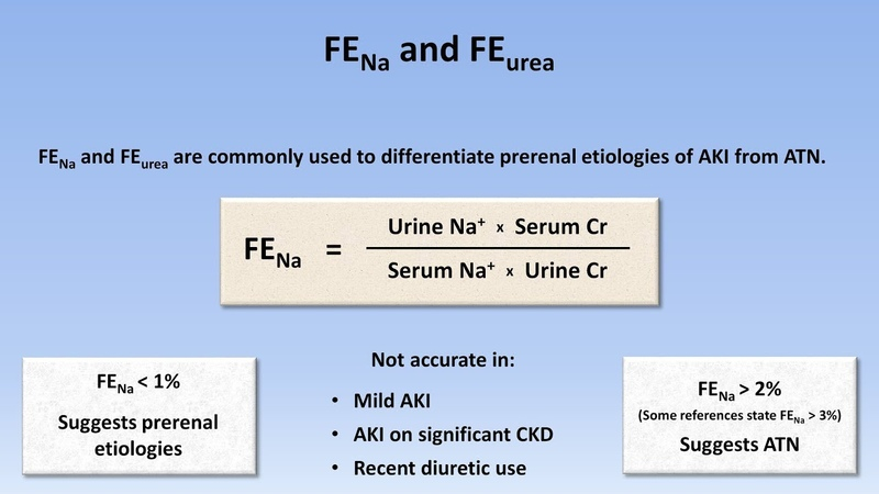 Acute Kidney Injury Part 2 3 Diagnostic Evaluation