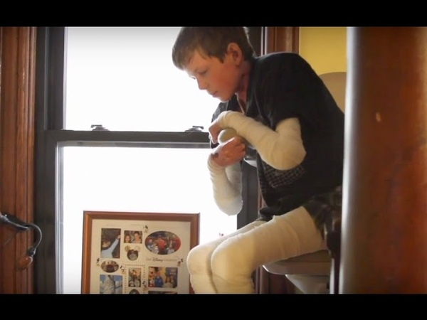 Epidermolysys bullosa Daily tasks excruciating for teen with rare disease