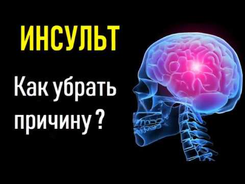 Инсульт. Причина инсульта, восстановление и лечение.