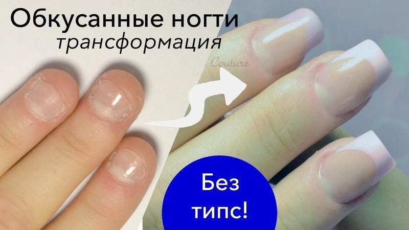 Наращивание на Короткие Обкусанные Ногти