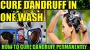 Herbal Dandruff Treatment At Home: How To Get Rid Of Dandruff Fast With Essential Oils Herbs