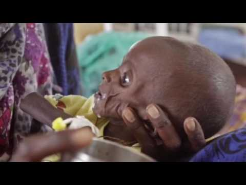 Somalia A Country on the Brink of Famine 2017
