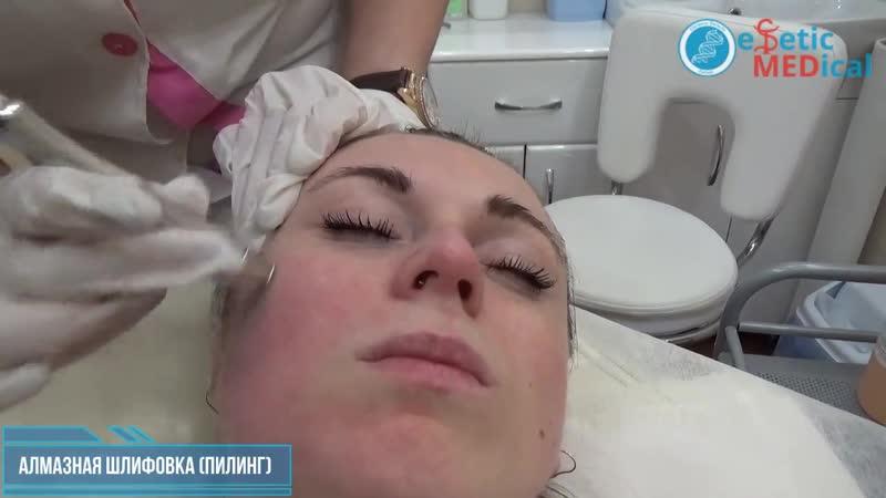 Алмазная шлифовка микродермабразия пилинг в Одессе клиники Estetic Medical
