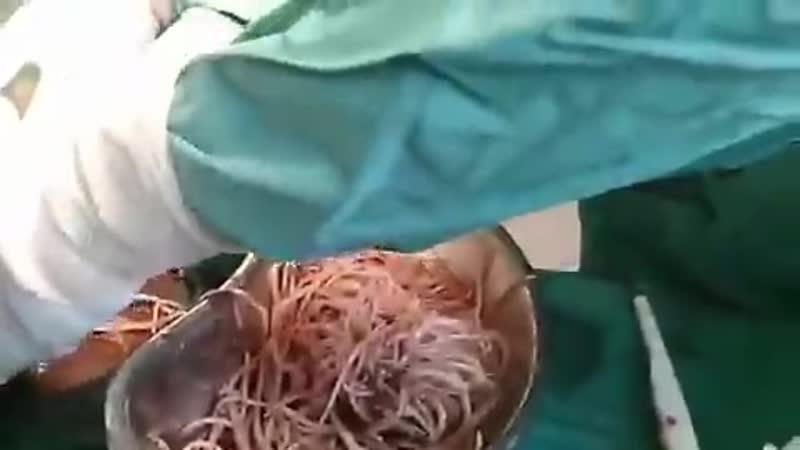 Worms_colon