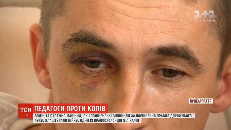 Освітяни проти копів на Прикарпатті директор школи та вчитель фізкультури побили поліцейських