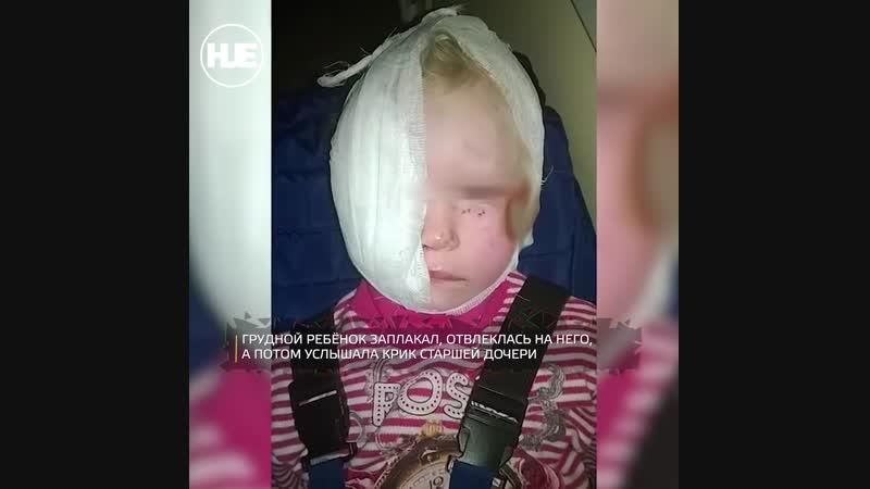В Среднеуральске девочке пришлось делать операцию после нападения собаки