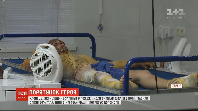 За життя юнака, який врятував свого дідуся під час пожежі, борються харківські лікарі
